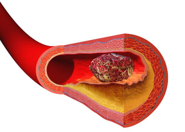image of blood vessel with blood clot