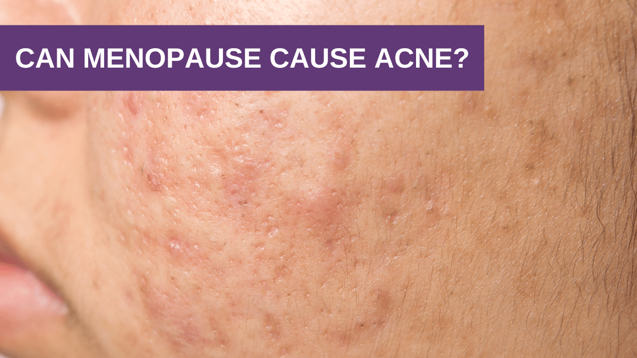 Can Menopause Cause Acne?