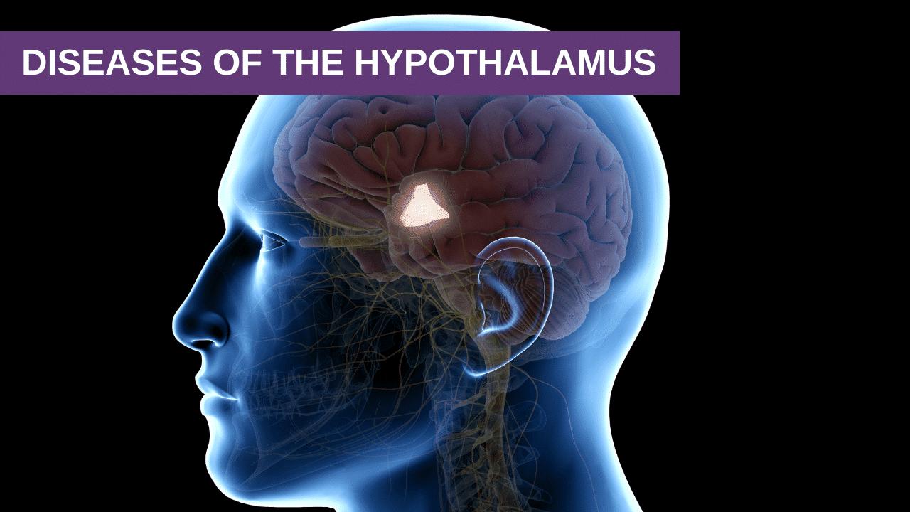 Diseases of the Hypothalamus
